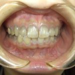 自分の歯を残すためにも定期健診に罹りましょう。