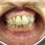 ノンクラスプ入れ歯は他人に入れ歯だとわかりにくいです。