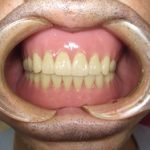 総入れ歯の完成は当院では5~6回ほどかかりますね。