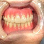 即時入れ歯のままでは問題が生じますね。